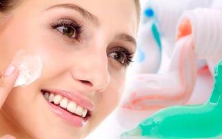Лечение прыщей с помощью обычной зубной пасты