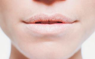 Как решается проблема шелушения губ?