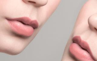 Лучшие способы коррекции опущенных уголков губ
