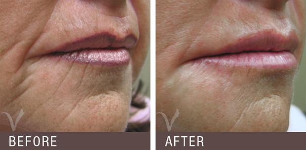 коррекция губ зрелой женщины