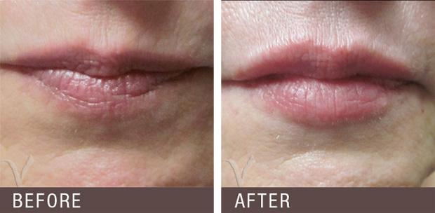 губы до и после гиалуроновой кислоты
