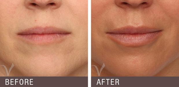 губы после гиалуроновой кислоты