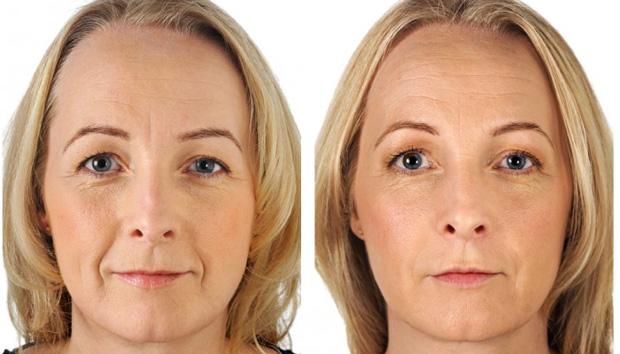 лицо до и после гиалуроновой кислоты