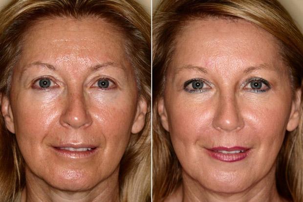 кожа до и после мезотерапии
