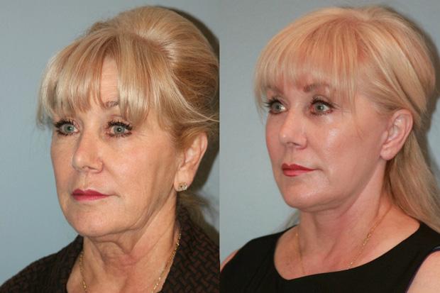 лицо до и после безинъекционной мезотерапии
