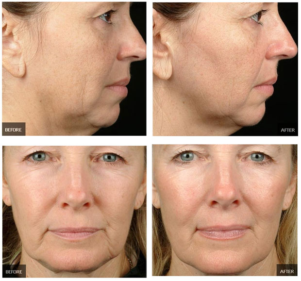 лицо до и после фракционной мезотерапии