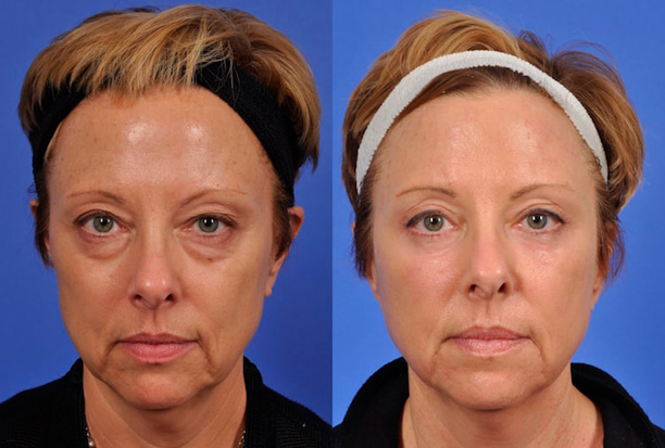 до и после блефаропластики глаз