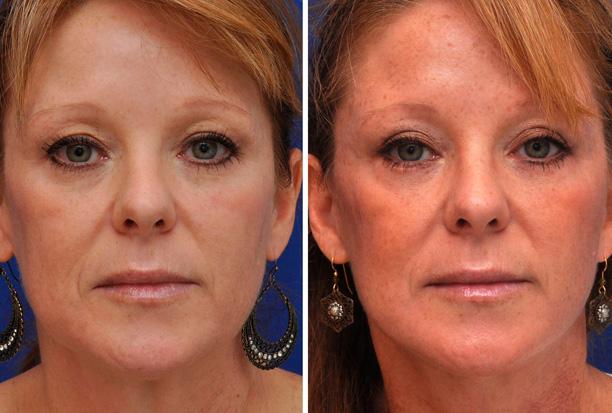 до и после лазерной блефаропластики глаз