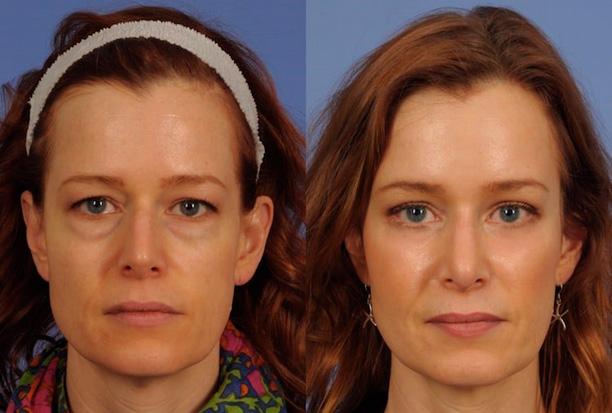 кожа глаз после блефаропластики