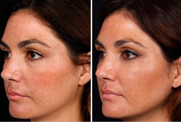 кожа после гиалуроновых инъекций