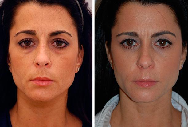 женщина после косметологической операции