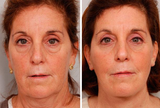 женщина после эстетической процедуры на глаза