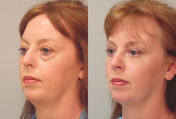 женщина после трансконъюктивальной блефаропластики