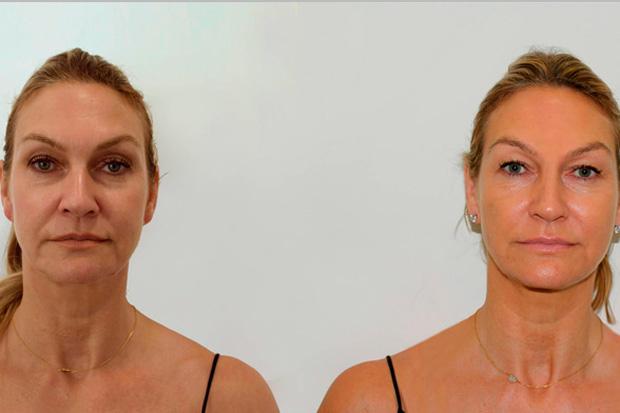 до и после биоармирования лица гиалуроновой кислотой