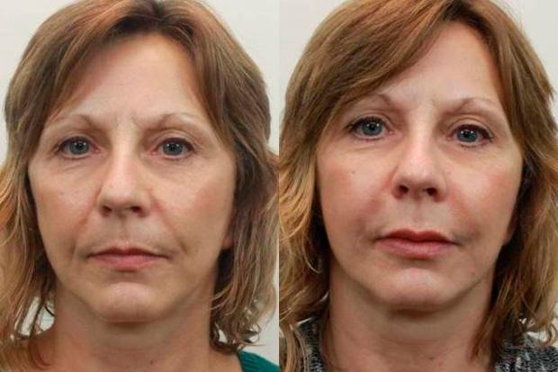 до и после филлеров в губы