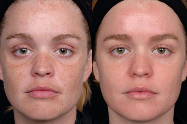 до и после фототерапии дома