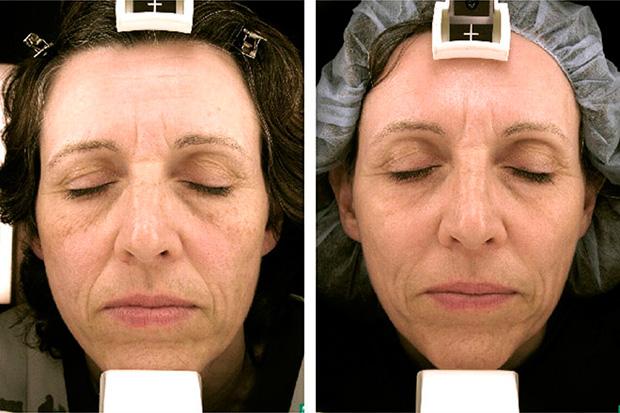 до и после фототерапии лица