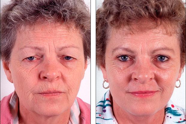 до и после инъекционной карбокситерапии