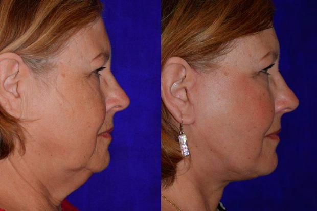 до и после хирургической подтяжки лица
