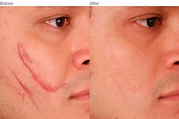 до и после лазерного удаления шрама