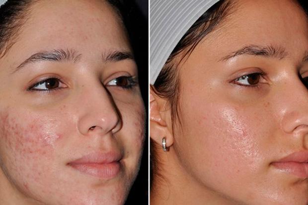 до и после удаления рубцов на коже