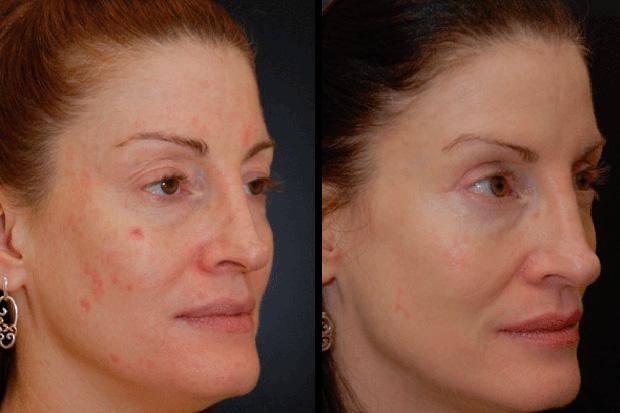 до и после удаления шрамов
