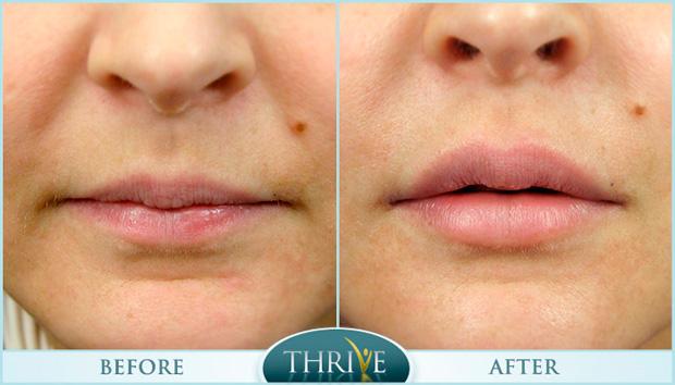 губы до и после ботокса