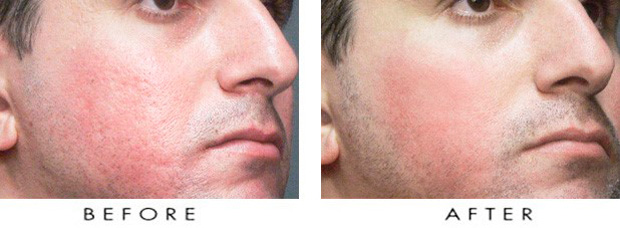 кожа лица мужчины до и после пилинга