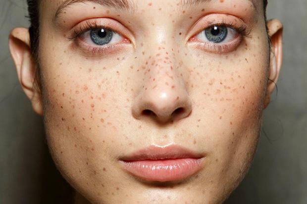 кожа на лице с веснушками