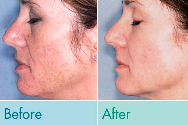 кожа после Элос-процедуры