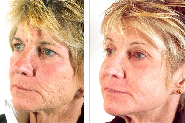 кожа после карбокситерапии