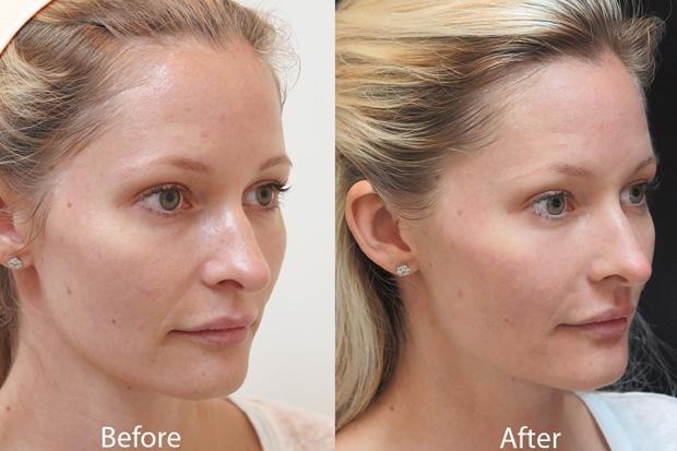 кожа женщины после карбонового пилинга