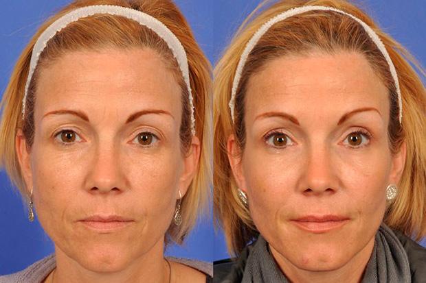лицо женщины после ботокса