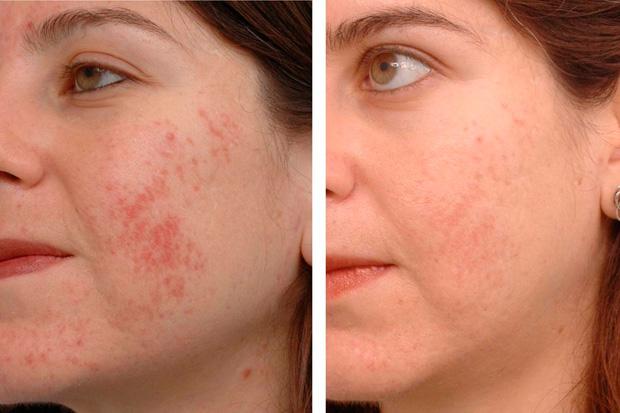 проблемная кожа после фототерапии
