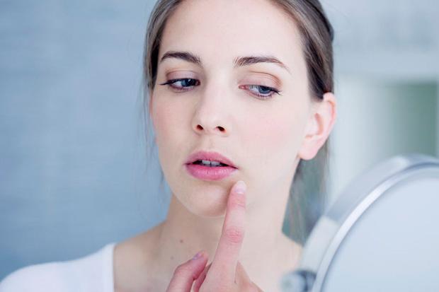 шелушение губ у девушки