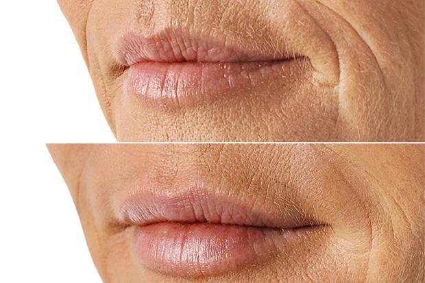 уголки губ до и после ботокса