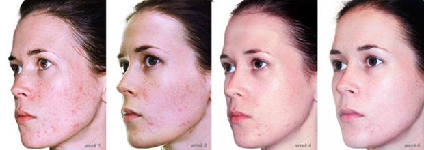 улучшение поверхности лица после пилинга