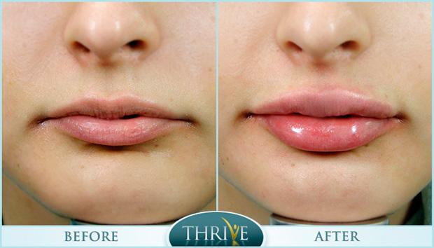 увеличение объема губ с помощью ботокса