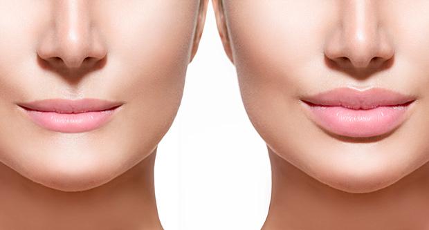 заметное увеличение губ
