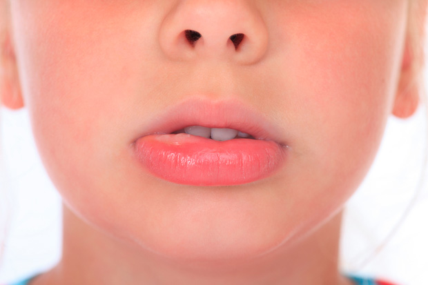 аллергия на губе